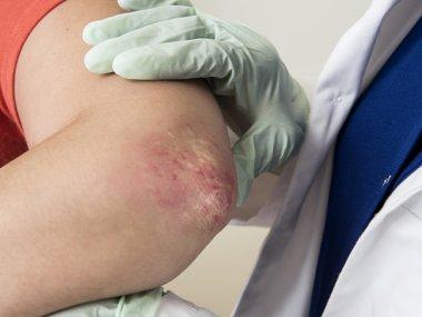 La urticaria crónica espontánea o idiopática es una enfermedad que se manifiesta en la piel y sus síntomas impactan en la calidad de vida.